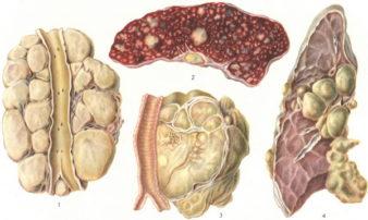 lymphogranulomatosis